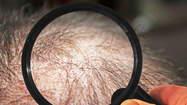 Krankheiten – Haarausfall