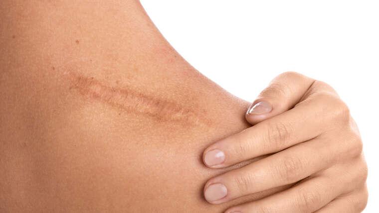 Ästhetisch – Narbenbehandlung