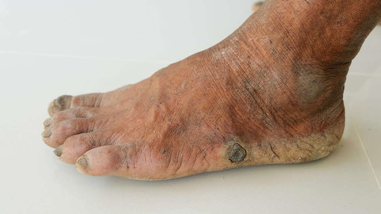 Krankheiten – Diabetisches Fußsyndrom